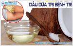 Hướng dẫn cách chữa bệnh trĩ bằng dầu dừa hiệu quả cao