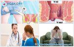 Những phòng khám bệnh trĩ ở Tuyên Quang chất lượng