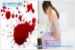 Nguyên nhân gây ra máu âm đạo nhiều