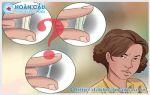 Triệu chứng bệnh lậu ở nữ là gì? Bệnh có nguy hiểm không