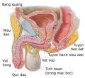 Những nguyên nhân gây viêm bàng quang ở nam giới