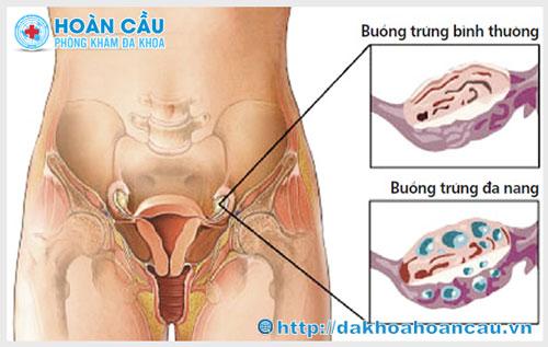 3 Biểu hiện thường gặp của buồng trứng đa nang