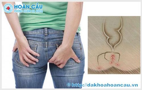 5 Nguyên nhân dẫn đến bệnh rò hậu môn