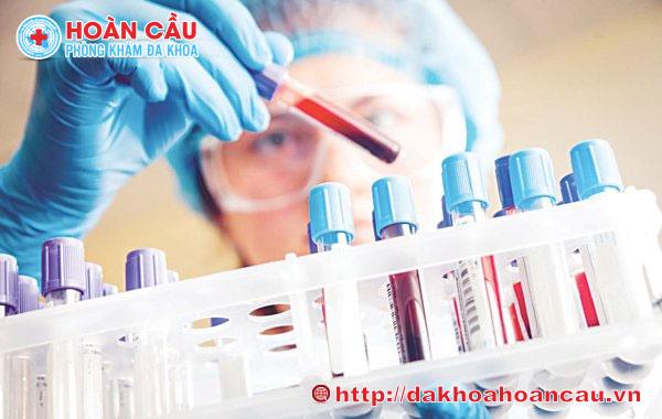 Xét nghiệm Chlamydia thường là xét nghiệm máu