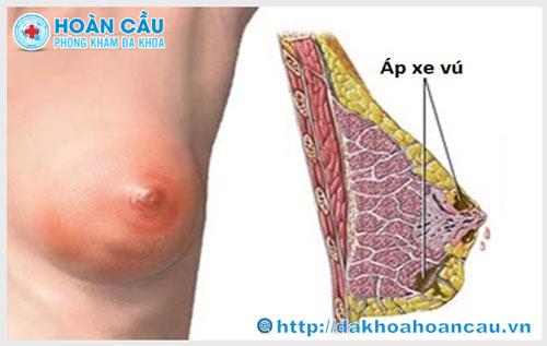 Apxe vú là bệnh gì và những nguyên nhân gây bệnh ?