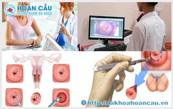 Điều trị viêm lộ tuyến cổ tử cung hiệu quả tại Hoàn Cầu
