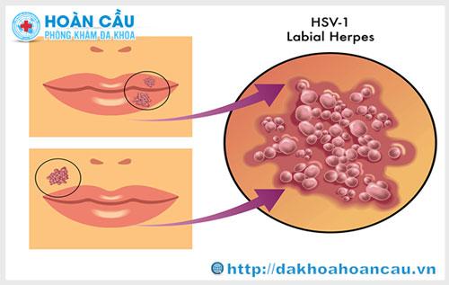 Bệnh herpes sinh dục và phương pháp điều trị