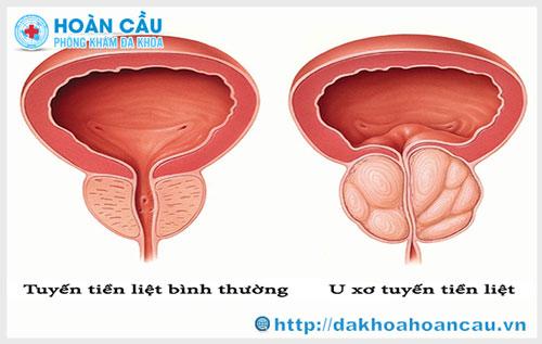Bệnh u xơ tuyến tiền liệt là gì?