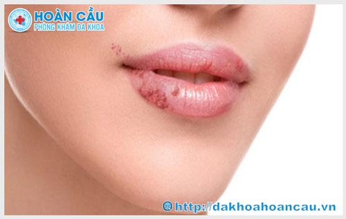 Bị mụn cóc sinh dục ở miệng nên chữa như thế nào?