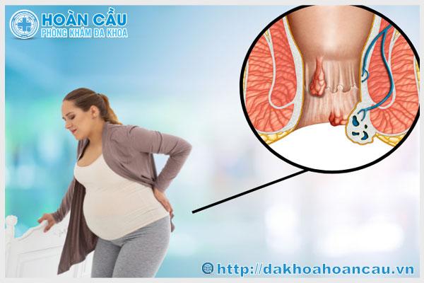 Trĩ nội - căn bệnh thường gặp ở phụ nữ mang thai