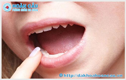 Biểu hiện bệnh lậu ở miệng và cách điều trị hiệu quả