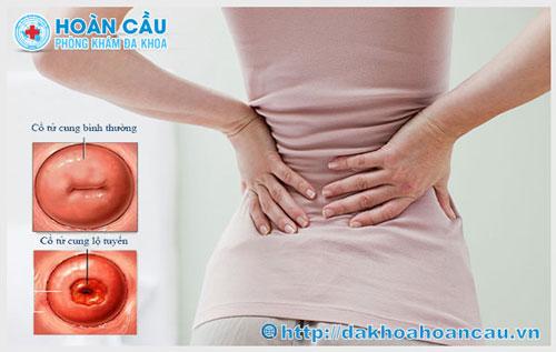 Đau thắt lưng do viêm lộ tuyến cổ tử cung phải không?
