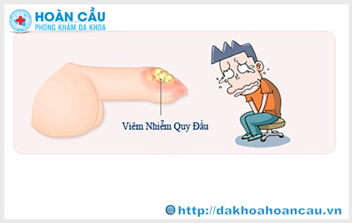 Hình ảnh bệnh viêm bao quy đầu ở nam giới