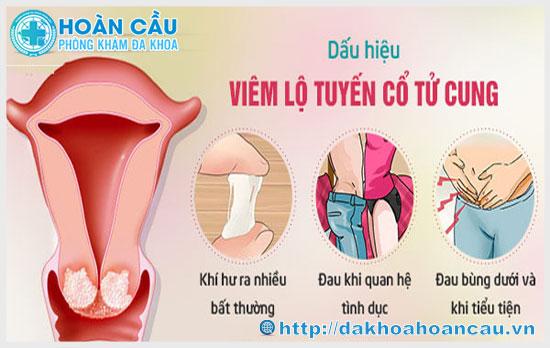 Hình ảnh dấu hiệu nhận biết bệnh viêm lộ tuyến cổ tử cung