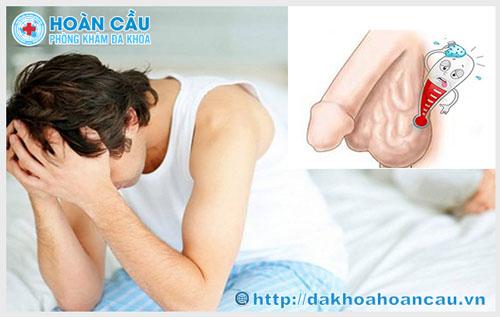 Khám chữa giãn tĩnh mạch thừng tinh ở đâu tốt nhất TPHCM?