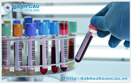 Thực hiện xét nghiệm bệnh lậu kịp thời, chuẩn xác tại Hoàn Cầu