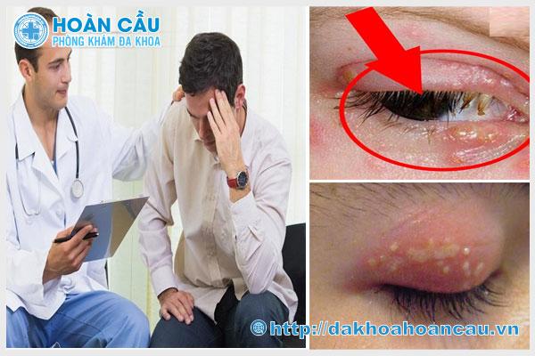 Triệu chứng nhận biết mụn rộp sinh dục ở mắt