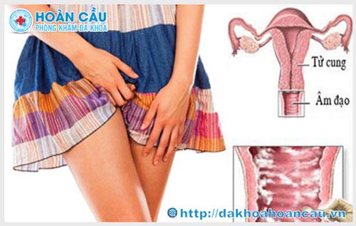 Nguyên nhân và cách điều trị viêm ngứa âm đạo