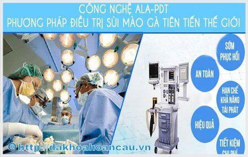Phương pháp ALA - PDT chữa trị sùi mào gà thành công tại Hoàn Cầu