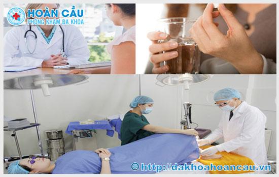 Quy trình chữa viêm lộ tuyến cổ tử cung bằng đốt điện
