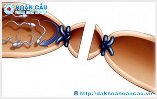 Tắc ống dẫn tinh và cách khắc phục