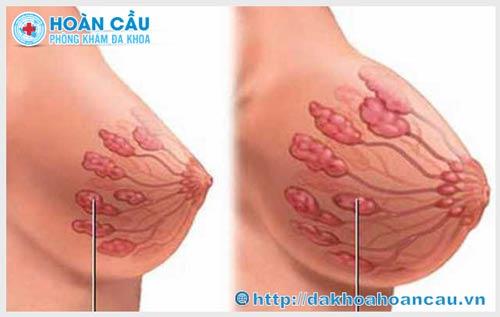 Tăng sinh tuyến vú là gì ?