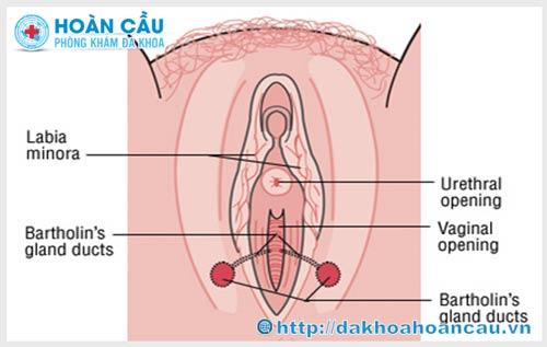 Tổng hợp những hình ảnh viêm tuyến bartholin