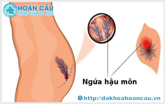 Dấu hiệu của bệnh trĩ ngoại dễ nhận biết
