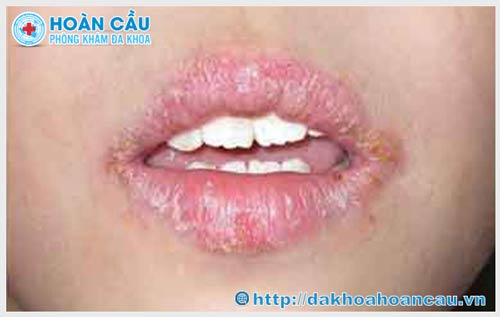 Triệu chứng sùi mào gà ở môi với biểu hiện rõ ràng