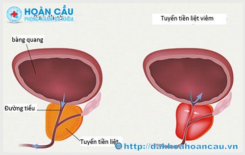 Triệu chứng bệnh viêm tuyến tiền liệt và cách chữa trị