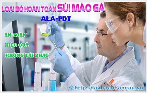 Phương pháp ALA - PDT chữa sùi mào gà an toàn, tiết kiệm