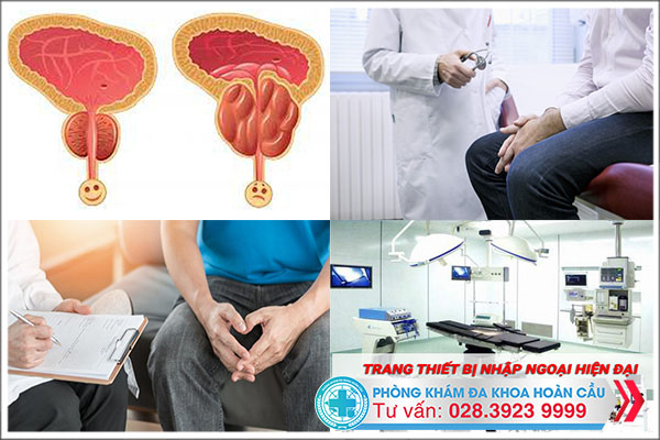 Cần sớm chữa trị tuyến tiền liệt phình to