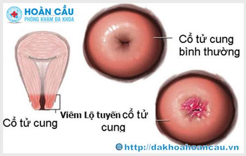 Viêm lộ tuyến cổ tử cung có nguy hiểm không ?