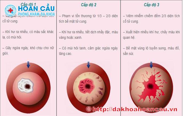 Dấu hiệu viêm lộ tuyến cổ tử cung độ 2