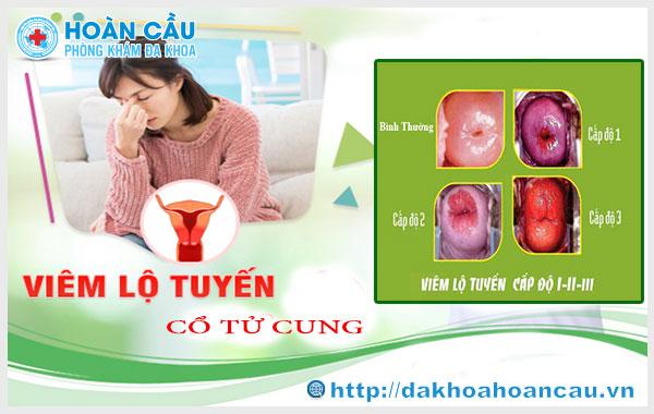 Vì sao cần điều trị viêm lộ tuyến cổ tử cung?