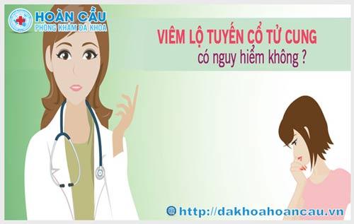 Viêm lộ tuyến cổ tử cung là gì ?